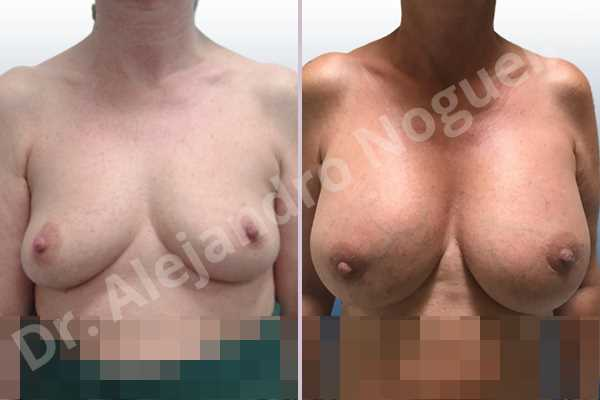 Empty breasts,Lateral breasts,Mildly saggy droopy breasts,Small breasts,Too far apart wide cleavage breasts,Wide breasts,Anatomical shape,Lower hemi periareolar incision,Subfascial pocket plane - photo 1