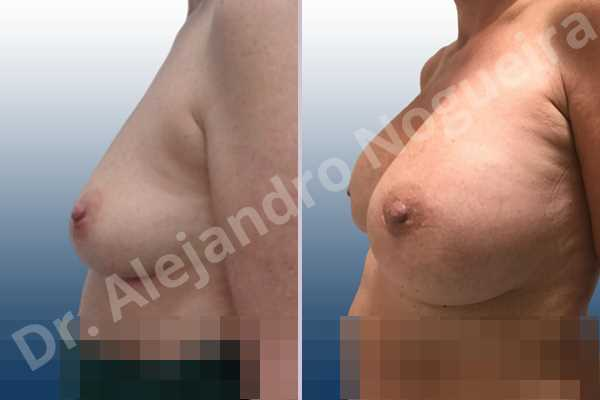 Empty breasts,Lateral breasts,Mildly saggy droopy breasts,Small breasts,Too far apart wide cleavage breasts,Wide breasts,Anatomical shape,Lower hemi periareolar incision,Subfascial pocket plane - photo 2