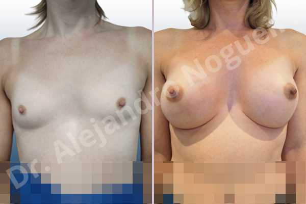 Cross eyed breasts,Empty breasts,Lateral breasts,Narrow breasts,Skinny breasts,Small breasts,Sunken chest,Too far apart wide cleavage breasts,Transgender breasts,Anatomical shape,Inframammary incision,Subfascial pocket plane - photo 1