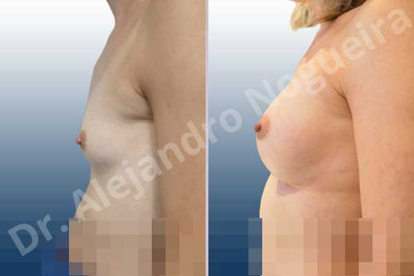 Cross eyed breasts,Empty breasts,Lateral breasts,Narrow breasts,Skinny breasts,Small breasts,Sunken chest,Too far apart wide cleavage breasts,Transgender breasts,Anatomical shape,Inframammary incision,Subfascial pocket plane - photo 2