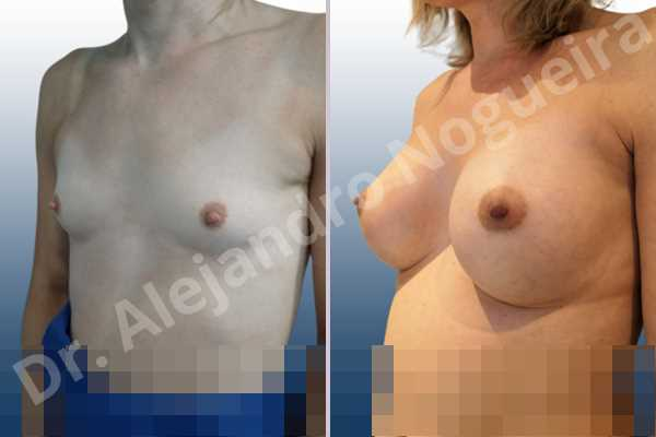 Cross eyed breasts,Empty breasts,Lateral breasts,Narrow breasts,Skinny breasts,Small breasts,Sunken chest,Too far apart wide cleavage breasts,Transgender breasts,Anatomical shape,Inframammary incision,Subfascial pocket plane - photo 3