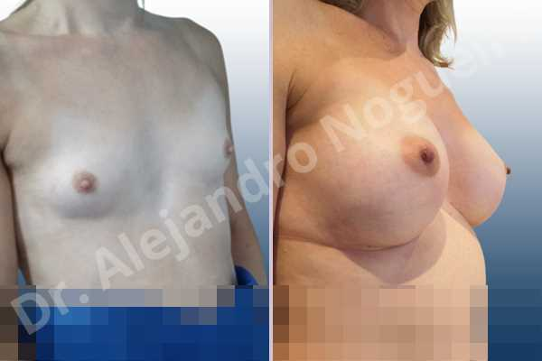 Cross eyed breasts,Empty breasts,Lateral breasts,Narrow breasts,Skinny breasts,Small breasts,Sunken chest,Too far apart wide cleavage breasts,Transgender breasts,Anatomical shape,Inframammary incision,Subfascial pocket plane - photo 5