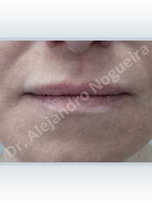 Small lips,Lower lip autologous dermis collagen filler,Upper lip autologous dermis collagen filler