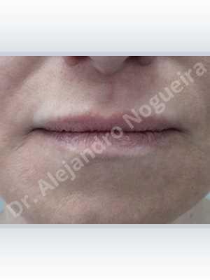 Small lips,Lower lip autologous dermis collagen filler,Upper lip autologous dermis collagen filler