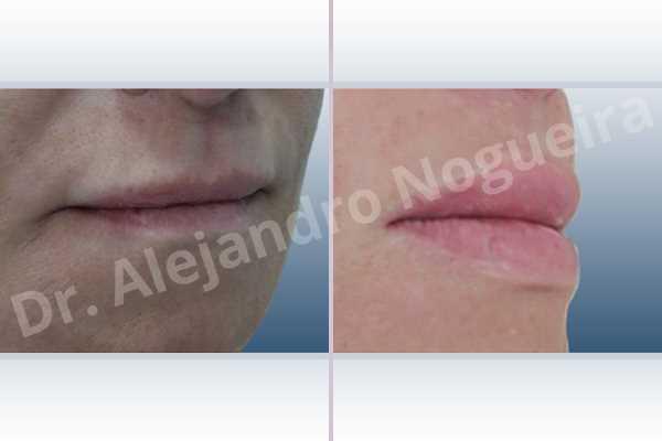 Small lips,Lower lip autologous dermis collagen filler,Upper lip autologous dermis collagen filler - photo 5