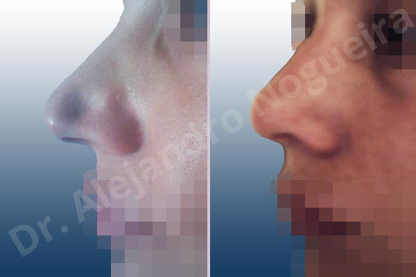 Alar rim retraction,Asymmetric nose,Asymmetric tip,Bifid columella,Bifid tip,Concave lateral cruras,Congenital nose,Crooked tip,Poorly supported tip,Tip bossae,Intercrural columella plasty sutures,Interdomal tip plasty sutures,Lateral cruras cephalic resection,Lateral cruras plasty sutures,Lateral cruras repositioning,Lateral cruras reverse plasty,Open approach incision,Tip defatting,Transdomal tip plasty scoring - photo 7