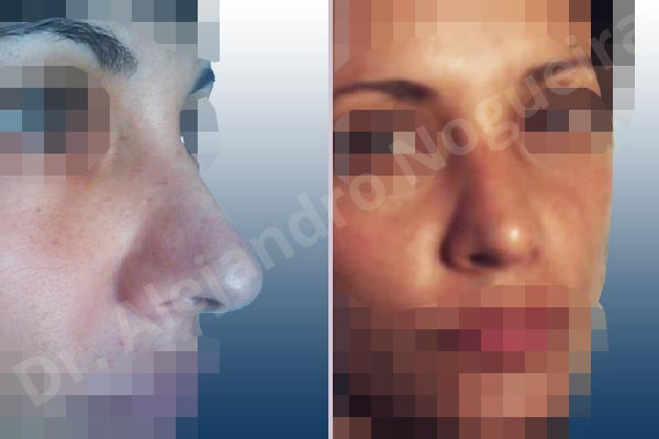 Before & After Case VAUA36KY