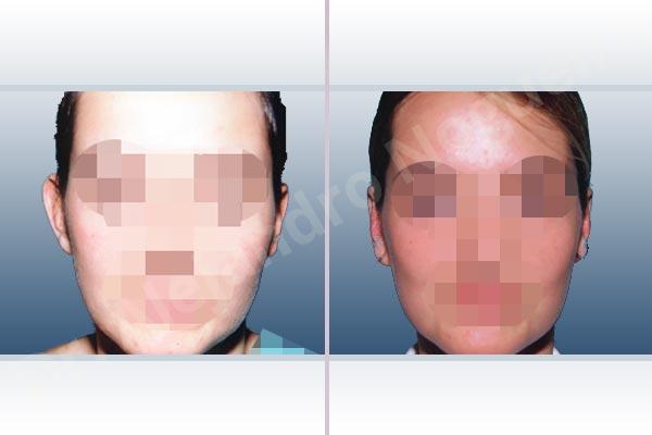 Before & After Case VCJMLRDA