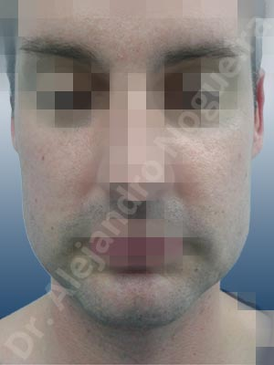 Hypertrophic scars,Small chin,Weak chin,Excisional scar revision,Oblique chin osteotomy,Osseous chin advancement,Two dimensional genioplasty