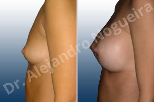 Lateral breasts,Narrow breasts,Skinny breasts,Small breasts,Sunken chest,Too far apart wide cleavage breasts,Anatomical shape,Lower hemi periareolar incision,Subfascial pocket plane - photo 2