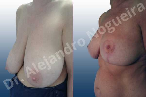 Asymmetric breasts,Breast tissue bottoming out,Extremely saggy droopy breasts,Large areolas,Pendulous breasts,Severely large breasts,Anchor incision,Areola reduction,Double vertical pedicle - photo 3