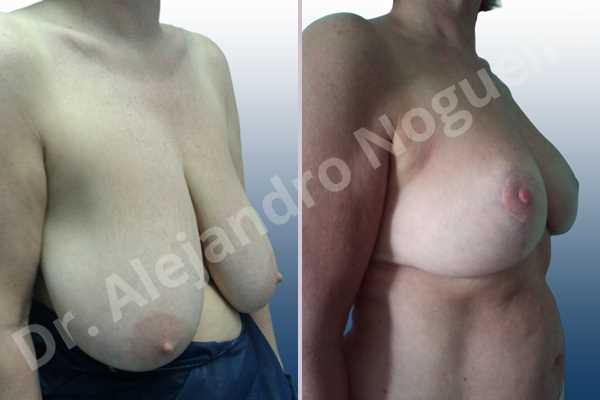 Asymmetric breasts,Breast tissue bottoming out,Extremely saggy droopy breasts,Large areolas,Pendulous breasts,Severely large breasts,Anchor incision,Areola reduction,Double vertical pedicle - photo 5