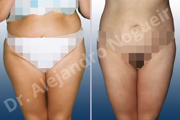 Before & After Case VG6G7Y4N