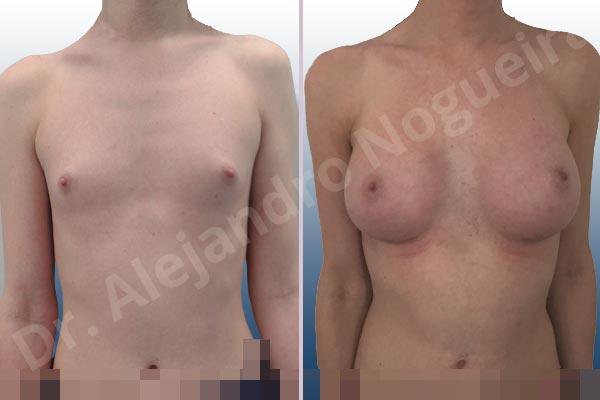 Lateral breasts,Narrow breasts,Skinny breasts,Small breasts,Too far apart wide cleavage breasts,Transgender breasts,Anatomical shape,Inframammary incision,Subfascial pocket plane - photo 1