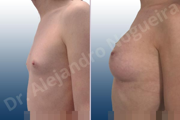 Lateral breasts,Narrow breasts,Skinny breasts,Small breasts,Too far apart wide cleavage breasts,Transgender breasts,Anatomical shape,Inframammary incision,Subfascial pocket plane - photo 2