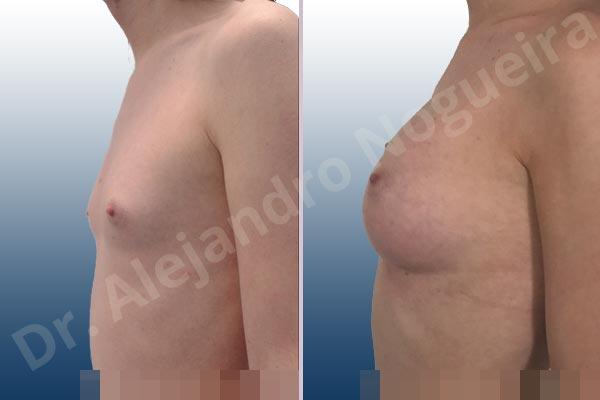 Before & After Case VGGAPTXN