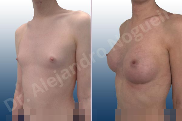 Lateral breasts,Narrow breasts,Skinny breasts,Small breasts,Too far apart wide cleavage breasts,Transgender breasts,Anatomical shape,Inframammary incision,Subfascial pocket plane - photo 3