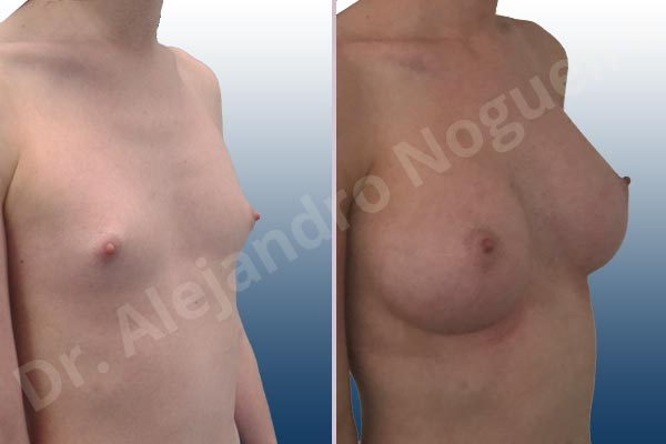 Lateral breasts,Narrow breasts,Skinny breasts,Small breasts,Too far apart wide cleavage breasts,Transgender breasts,Anatomical shape,Inframammary incision,Subfascial pocket plane - photo 5