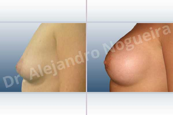 Asymmetric breasts,Cross eyed breasts,Empty breasts,Lateral breasts,Narrow breasts,Skinny breasts,Small breasts,Sunken chest,Too far apart wide cleavage breasts,Tuberous breasts,Anatomical shape,Lower hemi periareolar incision,Subfascial pocket plane,Tuberous mammoplasty - photo 2