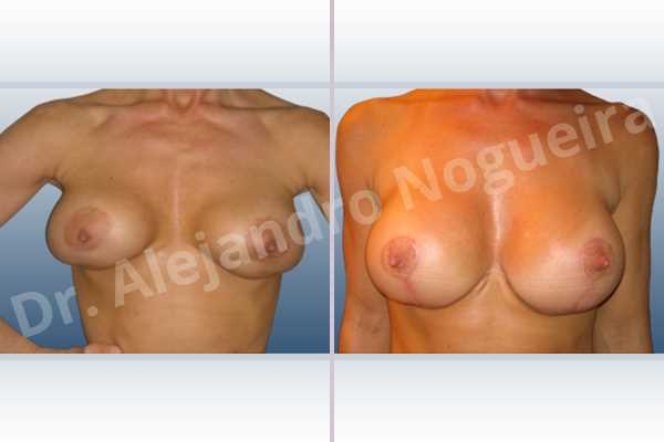 Asymmetric breasts,Breast implants animation muscle flex deformity,Breast implants displacement malposition,Breast implants double bubble deformity,Breast implants excessive movement,Breast implants riding too high,Displaced malpositioned scars,Failed breast lift,Hypertrophic scars,Keloid scars,Large areolas,Slightly saggy droopy breasts,Too narrow breast implants,Wide scars,Tuberous breasts,Anchor incision,Areola reduction,Custom incision,Round shape,Subfascial pocket plane,Superior pedicle - photo 2