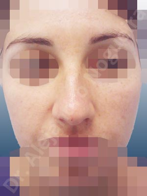 Broad dorsum,Broad nose,Dorsum hump,Dorsum ridges,Droopy tip,Dynamic alar flaring,Large alar cartilages,Large nose,Long nose,Long upper lateral cartilages,Mediterranean nose,Overprojected tip,Plunging tip deformity,Supratip break,Thin skin nose,Closed approach incision,Dorsum hump resection,Lateral cruras cephalic resection,Nasal bones osteotomies,Triangular cartilages caudal resection