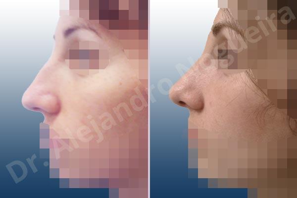 Before & After Case VNHBLNU8
