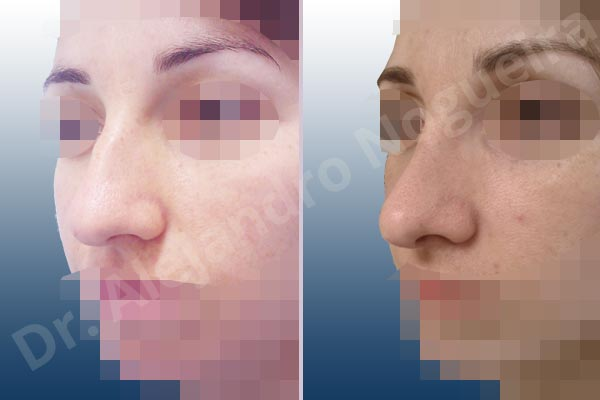 Broad dorsum,Broad nose,Dorsum hump,Dorsum ridges,Droopy tip,Dynamic alar flaring,Large alar cartilages,Large nose,Long nose,Long upper lateral cartilages,Mediterranean nose,Overprojected tip,Plunging tip deformity,Supratip break,Thin skin nose,Closed approach incision,Dorsum hump resection,Lateral cruras cephalic resection,Nasal bones osteotomies,Triangular cartilages caudal resection - photo 4