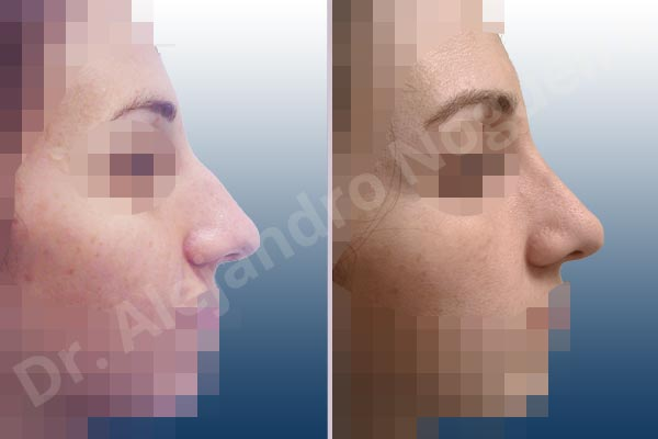Broad dorsum,Broad nose,Dorsum hump,Dorsum ridges,Droopy tip,Dynamic alar flaring,Large alar cartilages,Large nose,Long nose,Long upper lateral cartilages,Mediterranean nose,Overprojected tip,Plunging tip deformity,Supratip break,Thin skin nose,Closed approach incision,Dorsum hump resection,Lateral cruras cephalic resection,Nasal bones osteotomies,Triangular cartilages caudal resection - photo 5