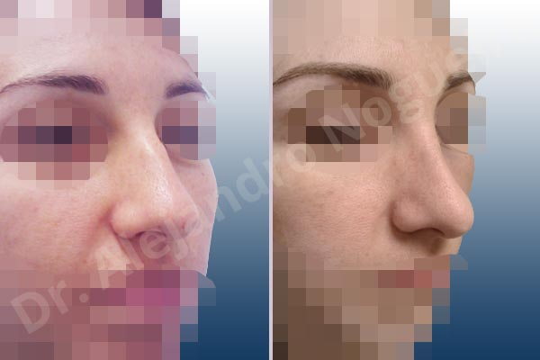 Broad dorsum,Broad nose,Dorsum hump,Dorsum ridges,Droopy tip,Dynamic alar flaring,Large alar cartilages,Large nose,Long nose,Long upper lateral cartilages,Mediterranean nose,Overprojected tip,Plunging tip deformity,Supratip break,Thin skin nose,Closed approach incision,Dorsum hump resection,Lateral cruras cephalic resection,Nasal bones osteotomies,Triangular cartilages caudal resection - photo 6