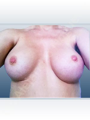 Asymmetric breasts,Breast implants animation muscle flex deformity,Breast implants displacement malposition,Breast implants double bubble deformity,Breast implants excessive movement,Breast implants riding too high,Empty breasts,Lateral breasts,Mildly saggy droopy breasts,Skinny breasts,Slightly saggy droopy breasts,Small breasts,Too far apart wide cleavage breast implants,Too far apart wide cleavage breasts,Too narrow breast implants,Capsulectomy,Custom made size and shape,Extra large size,Inframammary incision,Round shape,Subfascial pocket plane