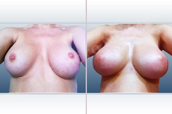 Asymmetric breasts,Breast implants animation muscle flex deformity,Breast implants displacement malposition,Breast implants double bubble deformity,Breast implants excessive movement,Breast implants riding too high,Empty breasts,Lateral breasts,Mildly saggy droopy breasts,Skinny breasts,Slightly saggy droopy breasts,Small breasts,Too far apart wide cleavage breast implants,Too far apart wide cleavage breasts,Too narrow breast implants,Capsulectomy,Custom made size and shape,Extra large size,Inframammary incision,Round shape,Subfascial pocket plane - photo 1