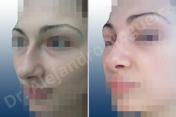 Before & After Case W2YYICAC