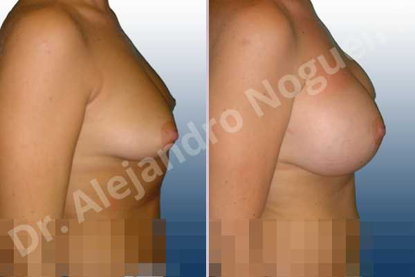 Asymmetric breasts,Cross eyed breasts,Empty breasts,Mildly saggy droopy breasts,Moderately saggy droopy breasts,Small breasts,Too far apart wide cleavage breasts,Tuberous breasts,Lower hemi periareolar incision,Round shape,Subfascial pocket plane,Tuberous mammoplasty - photo 4