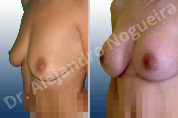 Empty breasts,Mildly saggy droopy breasts,Slightly saggy droopy breasts,Small breasts,Anatomical shape,Extra large size,Lower hemi periareolar incision,Subfascial pocket plane - photo 3