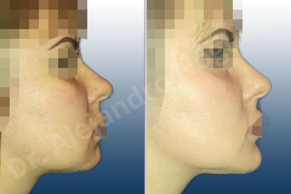 Before & After Case WGNVHRN2