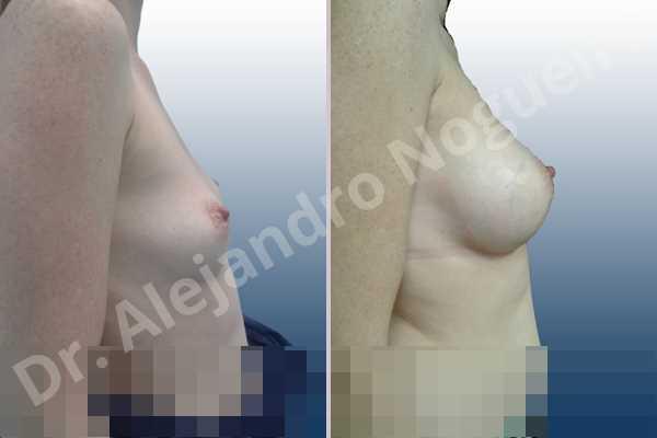 Breast implants symmastia uniboob,Cross eyed breasts,Empty breasts,Small breasts,Anatomical shape,Lower hemi periareolar incision,Subfascial pocket plane - photo 4