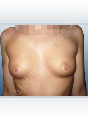 Cross eyed breasts,Empty breasts,Lateral breasts,Narrow breasts,Skinny breasts,Small breasts,Sunken chest,Too far apart wide cleavage breasts,Tuberous breasts,Extra large size,Lower hemi periareolar incision,Round shape,Subfascial pocket plane,Tuberous mammoplasty
