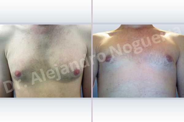 Gynecomastia,Subcutaneous mastectomy,Transareolar incision - photo 1