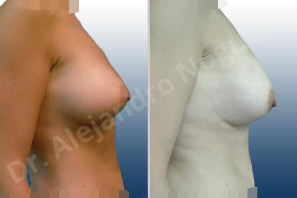 Breast implants animation muscle flex deformity,Breast implants displacement malposition,Breast implants double bubble deformity,Breast implants excessive movement,Breast implants lateral slide,Breast implants riding too high,Breast implants side boob,Empty breasts,Lateral breasts,Mildly saggy droopy breasts,Small breasts,Too far apart wide cleavage breasts,Too narrow breast implants,Anatomical shape,Capsulectomy,Internal bra capsulorrhaphy,Lower hemi periareolar incision,Subfascial pocket plane - photo 6