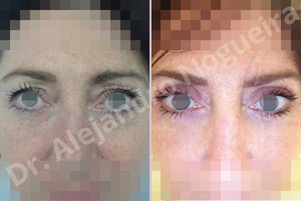 Baggy upper eyelids,Saggy upper eyelids,Upper eyelid fat bags resection,Upper eyelid skin and muscle resection