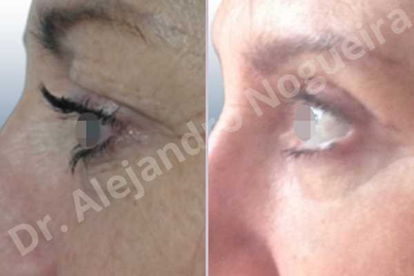 Baggy upper eyelids,Saggy upper eyelids,Upper eyelid fat bags resection,Upper eyelid skin and muscle resection - photo 2