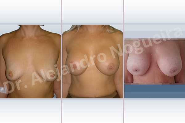 Empty breasts,Lateral breasts,Moderately large breasts,Pigeon chest,Small breasts,Too far apart wide cleavage breasts,Wide breasts,Dual plane pocket,Lower hemi periareolar incision,Round shape - photo 1