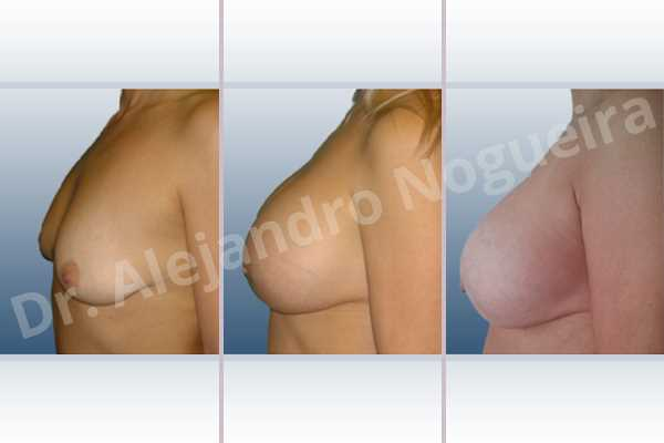 Empty breasts,Lateral breasts,Moderately large breasts,Pigeon chest,Small breasts,Too far apart wide cleavage breasts,Wide breasts,Dual plane pocket,Lower hemi periareolar incision,Round shape - photo 2