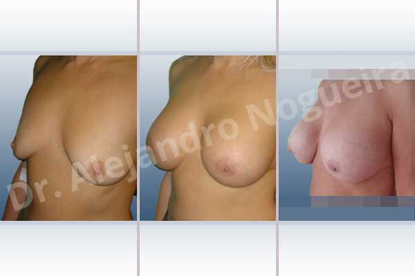 Empty breasts,Lateral breasts,Moderately large breasts,Pigeon chest,Small breasts,Too far apart wide cleavage breasts,Wide breasts,Dual plane pocket,Lower hemi periareolar incision,Round shape - photo 3