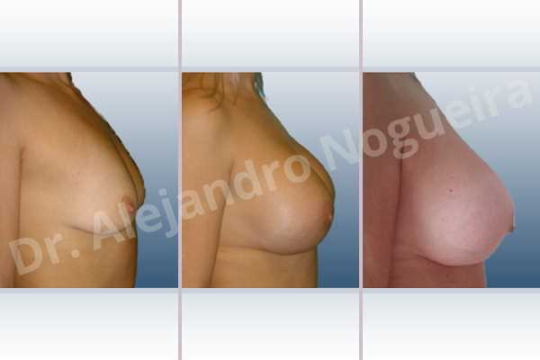 Empty breasts,Lateral breasts,Moderately large breasts,Pigeon chest,Small breasts,Too far apart wide cleavage breasts,Wide breasts,Dual plane pocket,Lower hemi periareolar incision,Round shape - photo 4