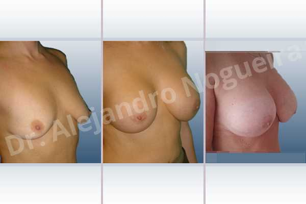 Empty breasts,Lateral breasts,Moderately large breasts,Pigeon chest,Small breasts,Too far apart wide cleavage breasts,Wide breasts,Dual plane pocket,Lower hemi periareolar incision,Round shape - photo 5