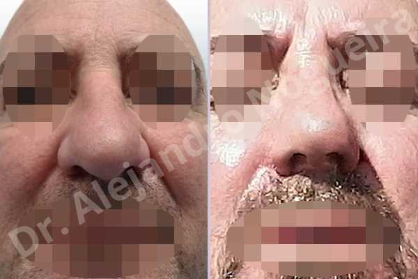 Alar flaring,Asymmetric nose,Asymmetric tip,Boxy tip,Broad dorsum,Broad nose,Bulbous tip,Dorsum ridges,Droopy tip,Dynamic alar flaring,Flat dorsum,High dorsum,High radix,Humpless dorsum,Large alar cartilages,Large nose,Large nostrils,Large sills,Long nose,Long septum,Long upper lateral cartilages,Overprojected tip,Parenthesis tip deformity,Plunging tip deformity,Poorly defined tip,Poorly supported tip,Rhomboid dorsum,Thick skin nose,Tip bossae,Alar base resection alarplasty,Alar contour rim graft,Columella strut graft,Custom made tip graft,Dorsum hump resection,Dorsum plateau resection,Ear cartilage graft harvesting,Extended columella strut graft,Intercrural columella plasty sutures,Interdomal tip plasty sutures,Lateral cruras batten graft,Lateral cruras cephalic resection,Lateral cruras repositioning,Lateral cruras shortening resection,Medial cruras shortening resection,Nasal bones osteotomies,Nostril sill resection,Open approach incision,Radix resection,Septal cartilage graft harvesting,Shield tip graft,Spreader graft,Tip defatting,Tongue in groove columella setback,Transdomal tip plasty scoring,Transdomal tip plasty sutures,Triangular cartilages caudal resection - photo 1