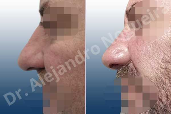 Alar flaring,Asymmetric nose,Asymmetric tip,Boxy tip,Broad dorsum,Broad nose,Bulbous tip,Dorsum ridges,Droopy tip,Dynamic alar flaring,Flat dorsum,High dorsum,High radix,Humpless dorsum,Large alar cartilages,Large nose,Large nostrils,Large sills,Long nose,Long septum,Long upper lateral cartilages,Overprojected tip,Parenthesis tip deformity,Plunging tip deformity,Poorly defined tip,Poorly supported tip,Rhomboid dorsum,Thick skin nose,Tip bossae,Alar base resection alarplasty,Alar contour rim graft,Columella strut graft,Custom made tip graft,Dorsum hump resection,Dorsum plateau resection,Ear cartilage graft harvesting,Extended columella strut graft,Intercrural columella plasty sutures,Interdomal tip plasty sutures,Lateral cruras batten graft,Lateral cruras cephalic resection,Lateral cruras repositioning,Lateral cruras shortening resection,Medial cruras shortening resection,Nasal bones osteotomies,Nostril sill resection,Open approach incision,Radix resection,Septal cartilage graft harvesting,Shield tip graft,Spreader graft,Tip defatting,Tongue in groove columella setback,Transdomal tip plasty scoring,Transdomal tip plasty sutures,Triangular cartilages caudal resection - photo 2