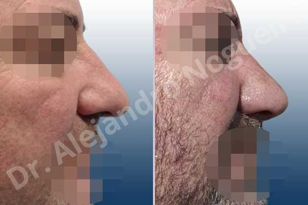 Before & After Case WZFMEAKI