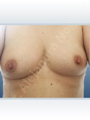 Asymmetric breasts,Cross eyed breasts,Empty breasts,Slightly saggy droopy breasts,Small breasts,Anatomical shape,Lower hemi periareolar incision,Subfascial pocket plane
